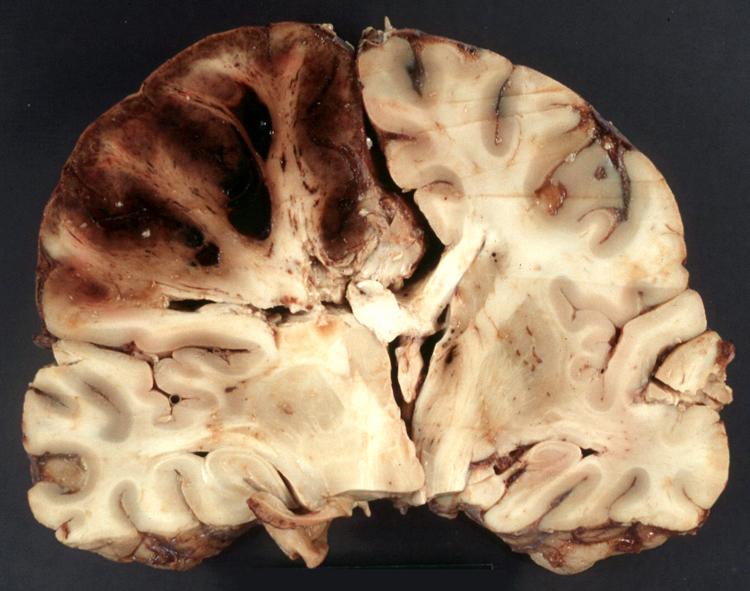 hardening of the brain