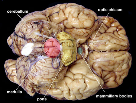 Chapter 1 Normal Gross Brain And Microscopy Stony Brook