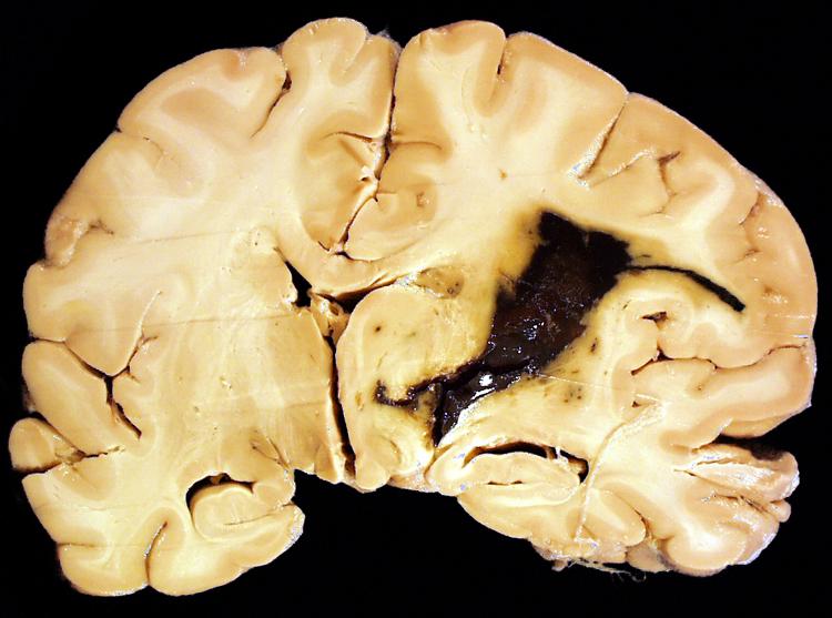 Chapter 2: Cerebrovascular Disease | Stony Brook ...