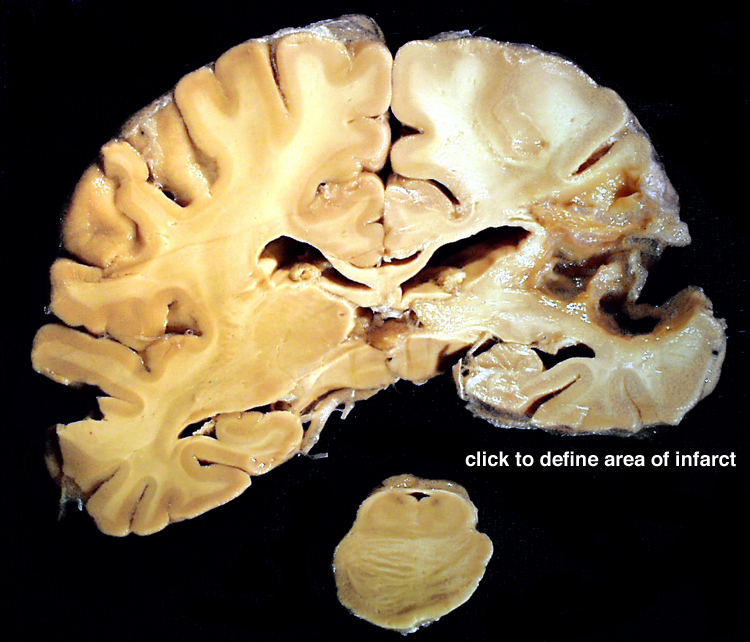 Chapter 2: Cerebrovascular Disease | Stony Brook University School ...