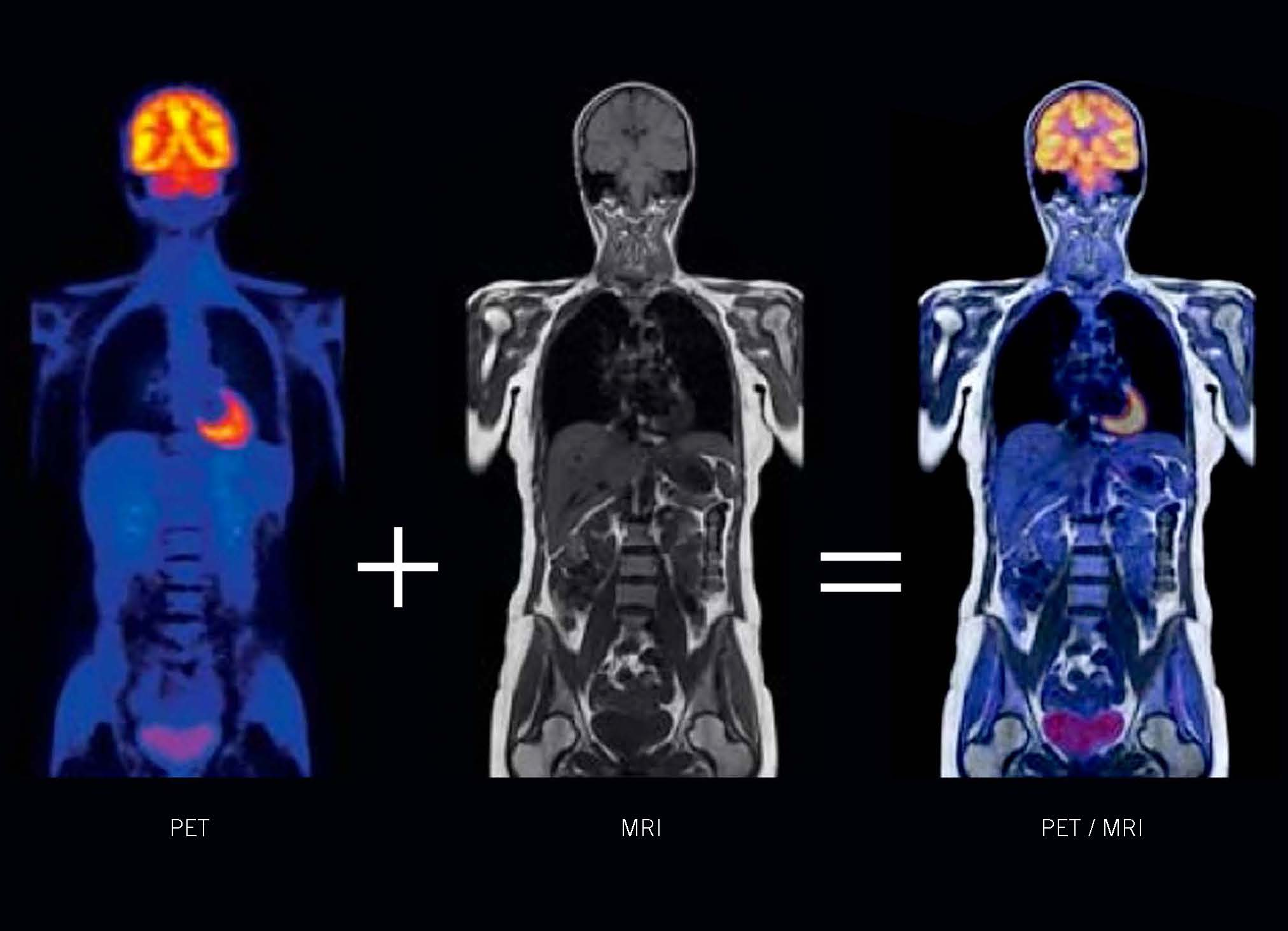 PET/MRI | Stony Brook University School of Medicine