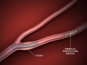 Stent placed in carotid artery along with embolic protection device, as done at Stony Brook.